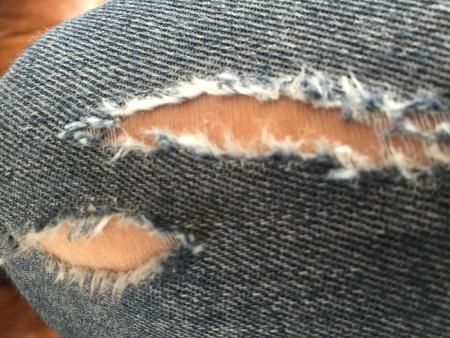 Rare disease day: draag een spijkerbroek, anders dan anders